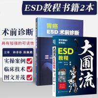 2本 大圃流ESD教程手术技巧+胃癌ESD术前诊断 胃镜检查诊断