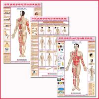 中医针灸拔罐手法与疗法标准挂图穴位保健图双面正侧背
