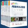 CT快速入门丛书(6册)消化系统CT诊断+胸部CT诊断+心血管系统CT诊断+骨关节肌肉系统CT诊断+