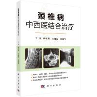 颈椎病中西医结合治疗
