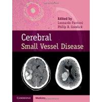 【预订】Cerebral Small Vessel Disease 9781107031661