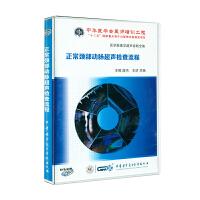 正常颈部动脉超声检查流程DVD-ROM( 货号:789419134)
