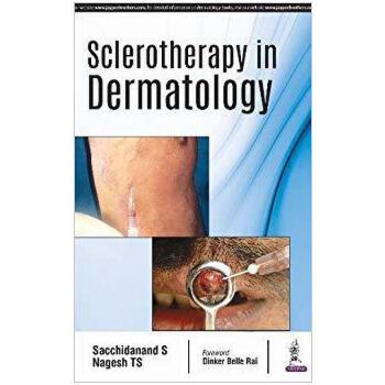 【预订】Sclerotherapy in Dermatology 9789352702060 美国库房发货,通常付款后3-5周到货!
